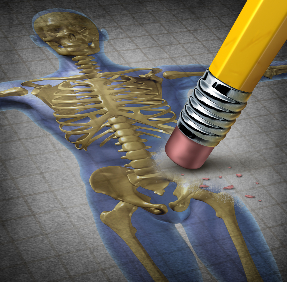 骨粗しょう症に繋がる「骨密度・骨量」が低下する原因とは
