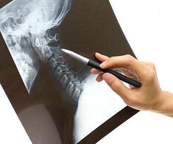 首の関節をポキポキ鳴らすと寿命が縮まる? 骨の変形を招くリスクを知ろう