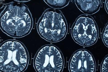 脳の血流で認知症かどうかがわかる「SPECT検査」とは
